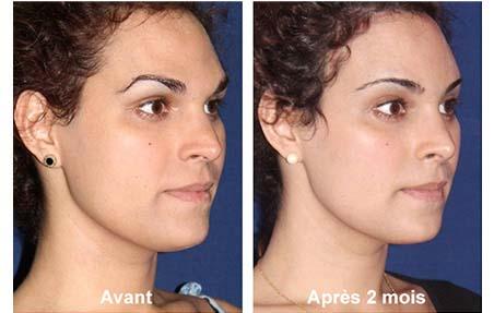 Le traitement laser de la peau de la personne