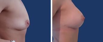 Quitar los implantes mamarios