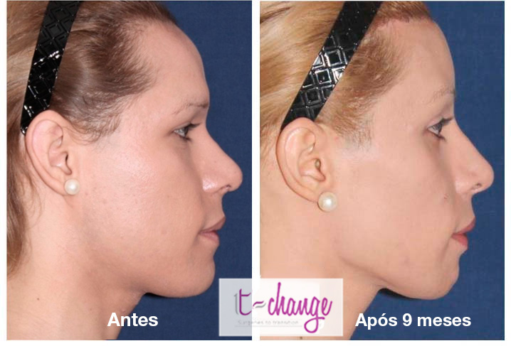 Full facial feminization surgery Dr Javier Rossi before and after