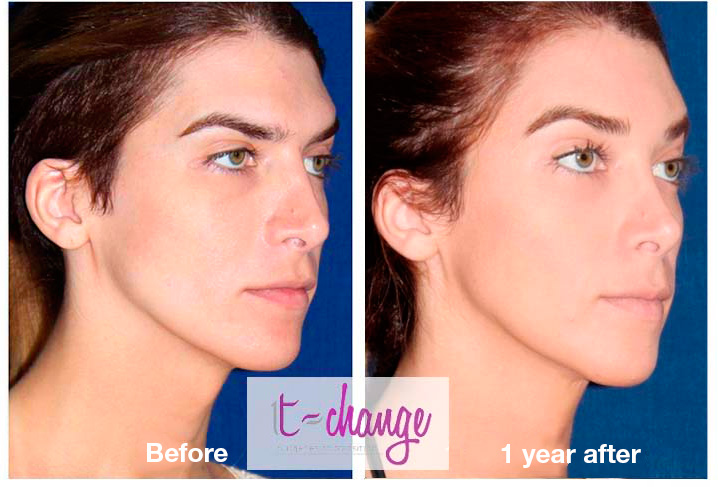 Eyebrow Lift Young Patient