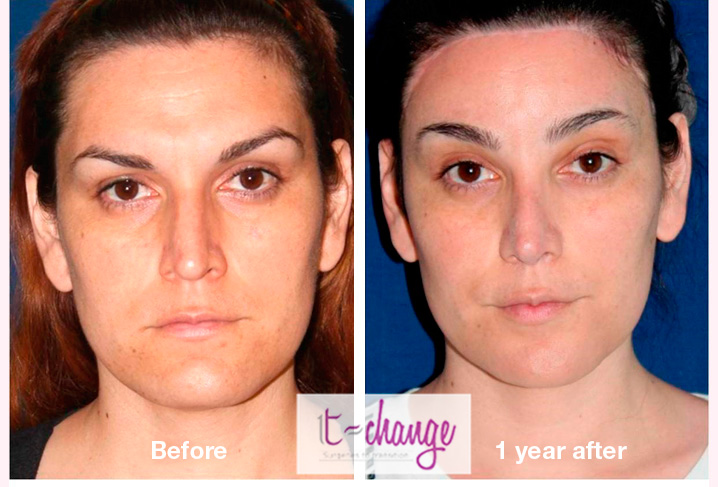 Facial Feminization Surgery before and after - FFS Pictures