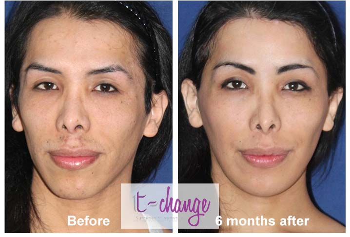 Before and after facial feminization photos