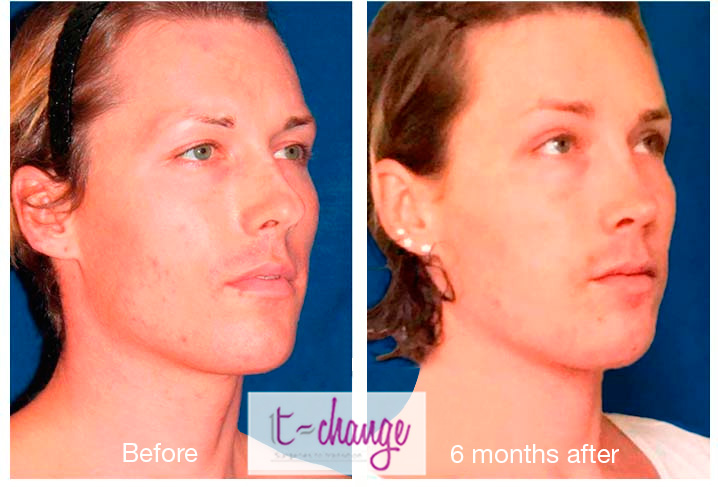 Examples results feminization facial and