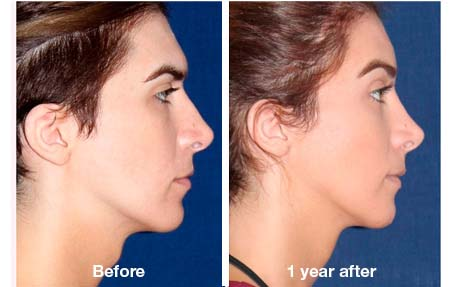 Facial feminization surgery pictures