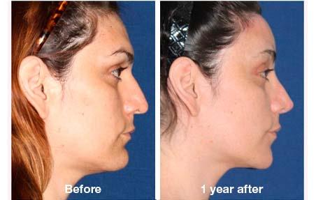 Facial Feminization Surgery - FFS Surgery | T-Change with Dr