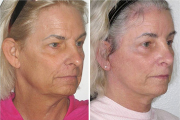Facial Femenization with Facelift. Before and after