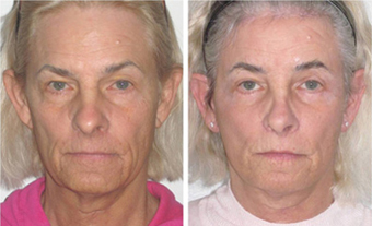 Facial Femenization with face lift. Before and after