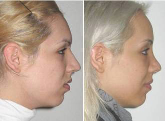 Partial Facial Feminization Surgery (just forehead and nose)