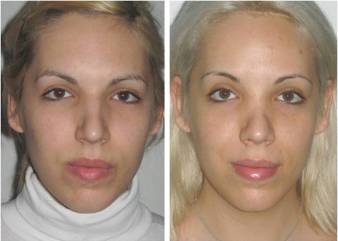 Facial Femenization. Before surgery and 3 years after it.