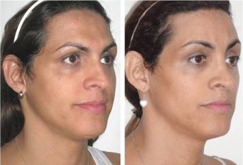 Facial Femenization. Facial Feminization Surgery (just forehead and nose).