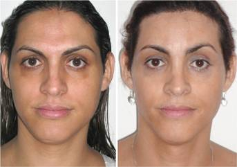 Facial Femenization. Before surgery and 1 year after it.