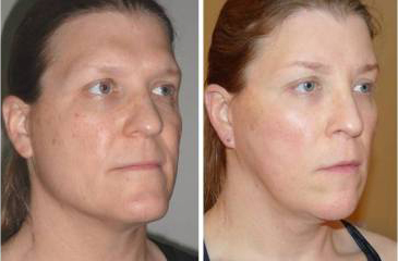 Facial Femenization. Before and 1 month after