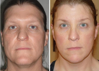 Facial Femenization. Before and after 1